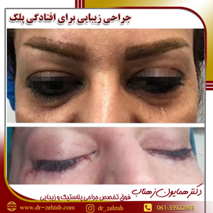 عکس-قبل-و-بعد-از-جراحی-افتادگی-پلک