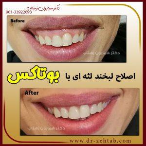 اصلاح لبخند با تزریق بوتاکس در اهواز