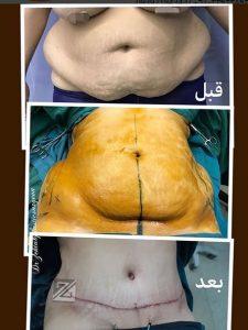 کوچک کردن شکم بعد از عمل